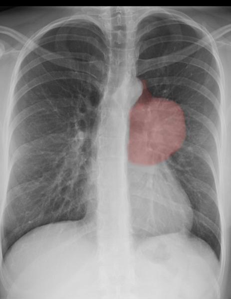 Życie z nowotworem. Rak blog.